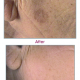 Indications-263w-laser-skin-pigmentation-treatments