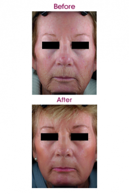 Indications-263w-laser-wrinkle-reduction