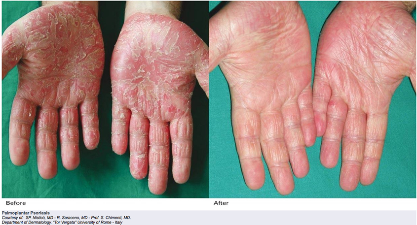 Little is known about its effect on palmoplantar psoriasis 1