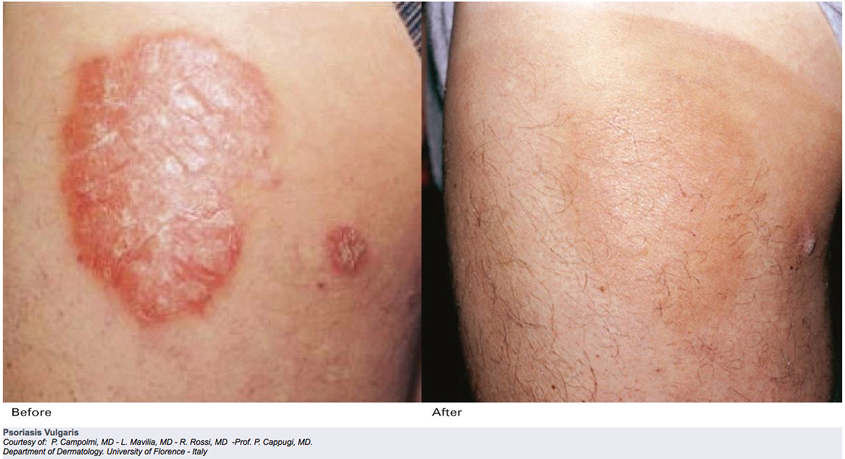 Evaluation of 308-nm monochromatic excimer light in the treatment of psoriasis vulgaris and palmoplantar psoriasis 2